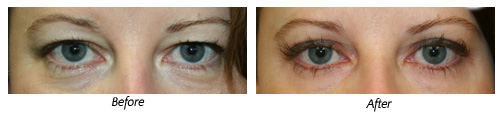 Before and after eyelid surgery by Dr. Charles Gaudet, Portsmouth, NH